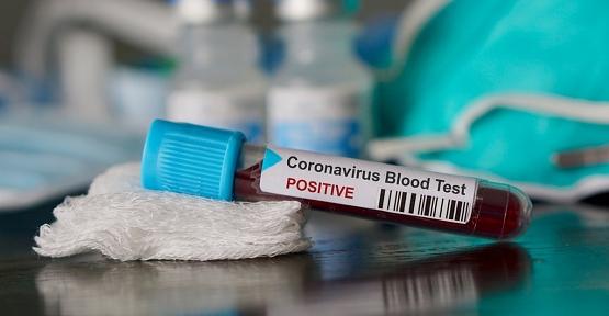 Corona Virüsle Mücadele Kapsamında Test Yapılacak Labaratuvar Sayısı 16'ya Çıkarıldı