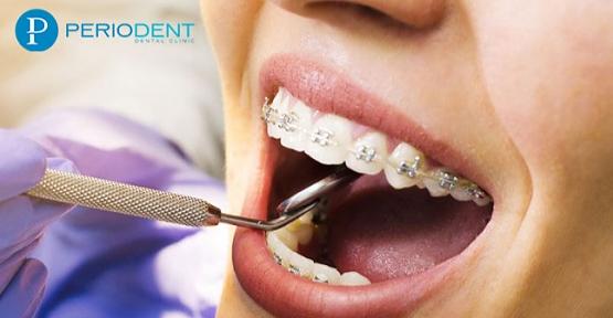 Ortodonti Diş Teli Fiyatları