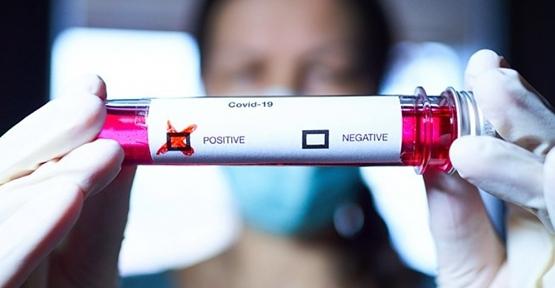 Özel Hastaneler Corona Virüs Tedavisinde Tekrar Devrede